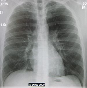 English: Normal AP chest xray