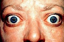 מחלת גרייבס - Graves' disease – ויקירפואה