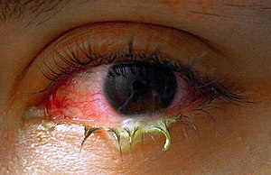 A swollen, pus-filled eye with conjunctivitis.