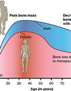 Bone density peaks at about years of age women lose mass more rapidly than men also osteoporosis wikipedia rh enpedia