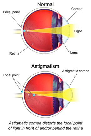 Icd 10 Hypermetropia : hypermetropia, Astigmatism, Wikipedia