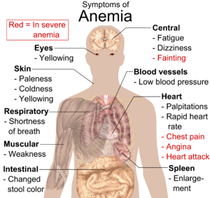 Main symptoms that may appear in anemia. (See ...