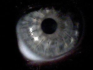 Human eye about 1 week after a Cornea transpla...