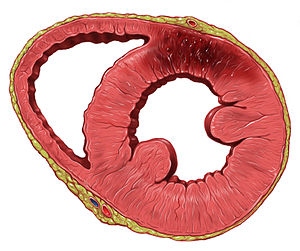Heart Posterior left ventricle wall infarction