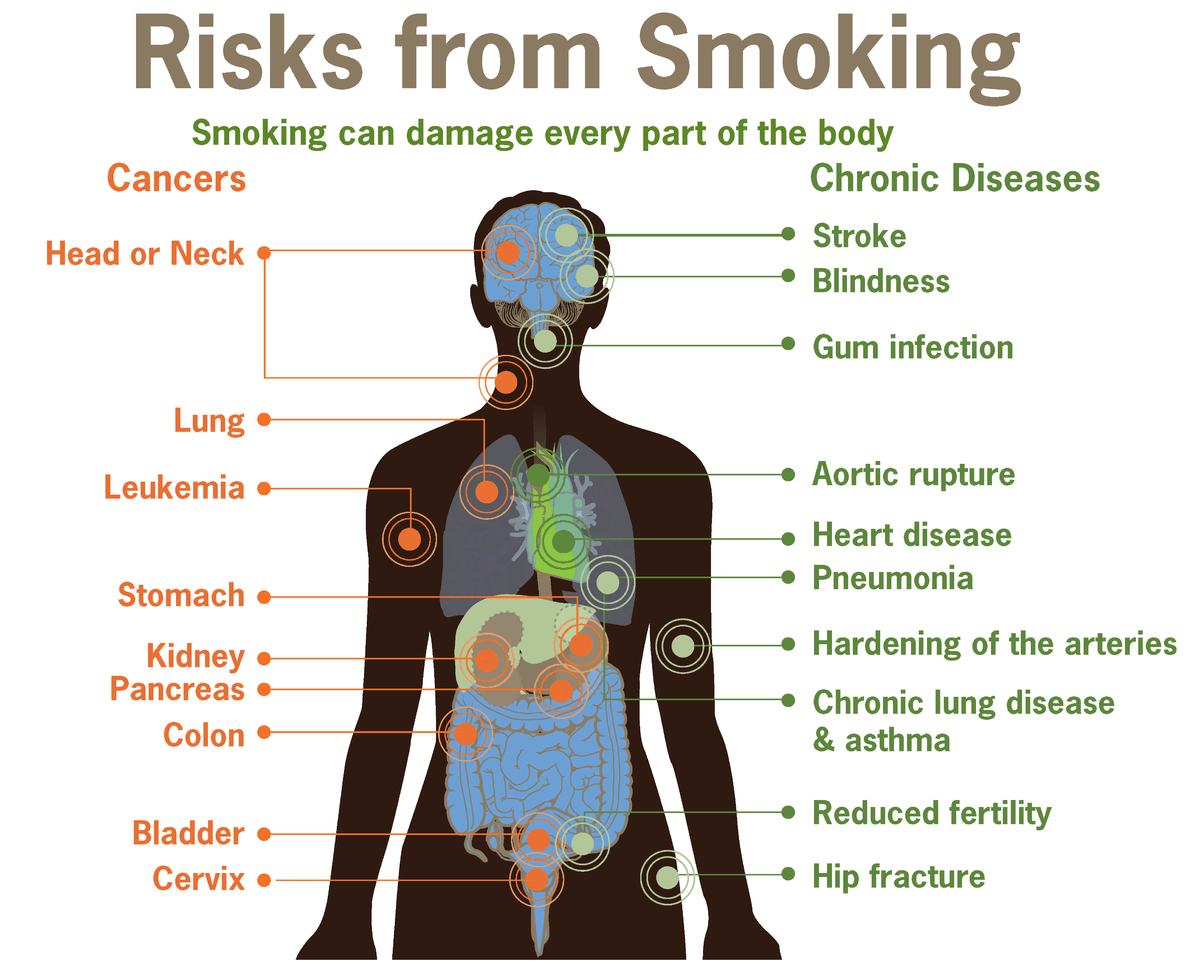 health effects of tobacco wikipedia