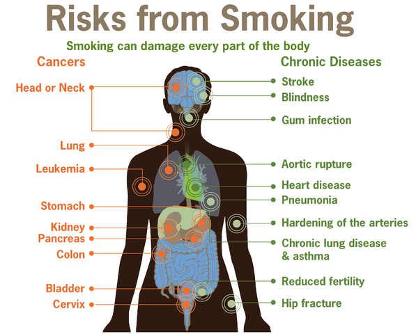 https://i0.wp.com/upload.wikimedia.org/wikipedia/commons/thumb/9/92/Risks_form_smoking-smoking_can_damage_every_part_of_the_body.png/597px-Risks_form_smoking-smoking_can_damage_every_part_of_the_body.png