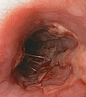 English: endoscopic view of herpes esophagitis