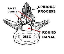 Stenosis: Thoracic Stenosis