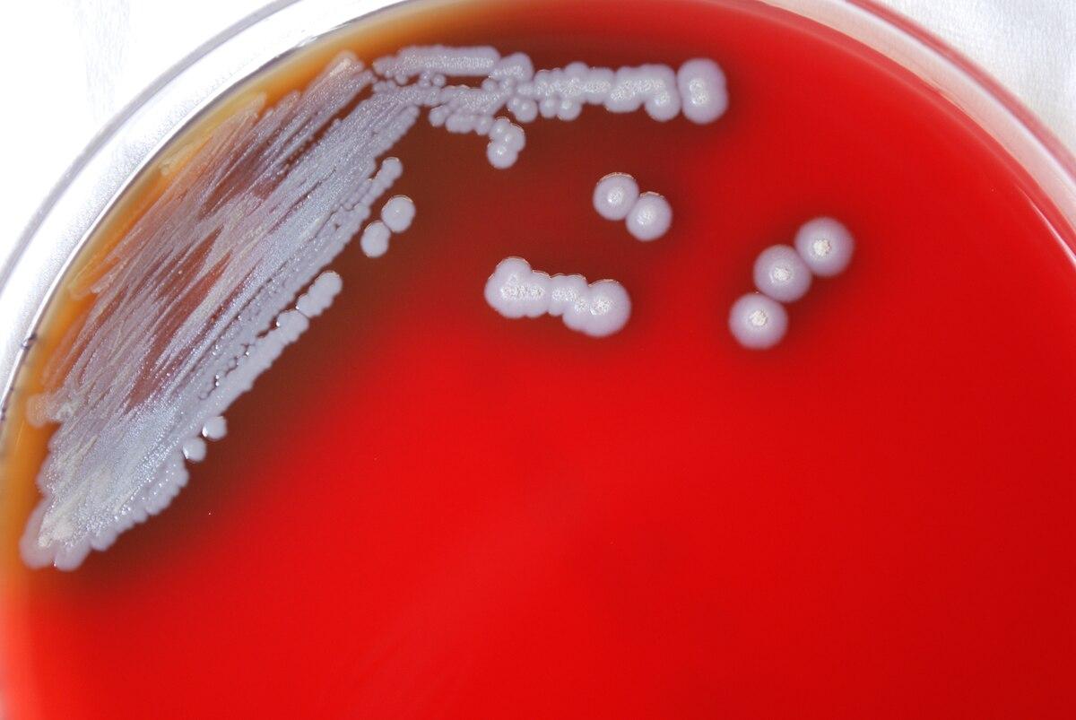 類鼻疽伯克氏菌 - 維基百科,自由的百科全書
