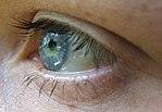 Geöffnetes menschliches Auge mit oberem und unterem Augenlid sowie einer Oberlidfurche