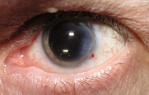 Cataract surgery performed, IOL inserted. Note...