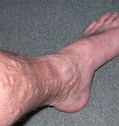 varicose ulcer diagram [ 1200 x 900 Pixel ]