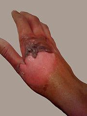 Escala de Quemaduras. Grados de lesiones por quemadura ...