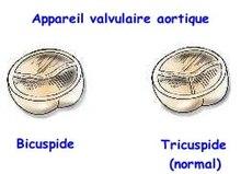 Valves-aortiques.jpg
