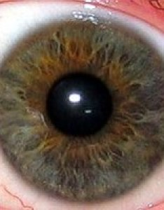 The iris is greenish yellow area surrounding transparent pupil showing as black white outer sclera central part also iridology wikipedia rh enpedia