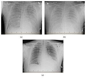 Hantavirus pulmonary syndrome - Wikipedia