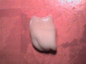 Wisdom tooth1