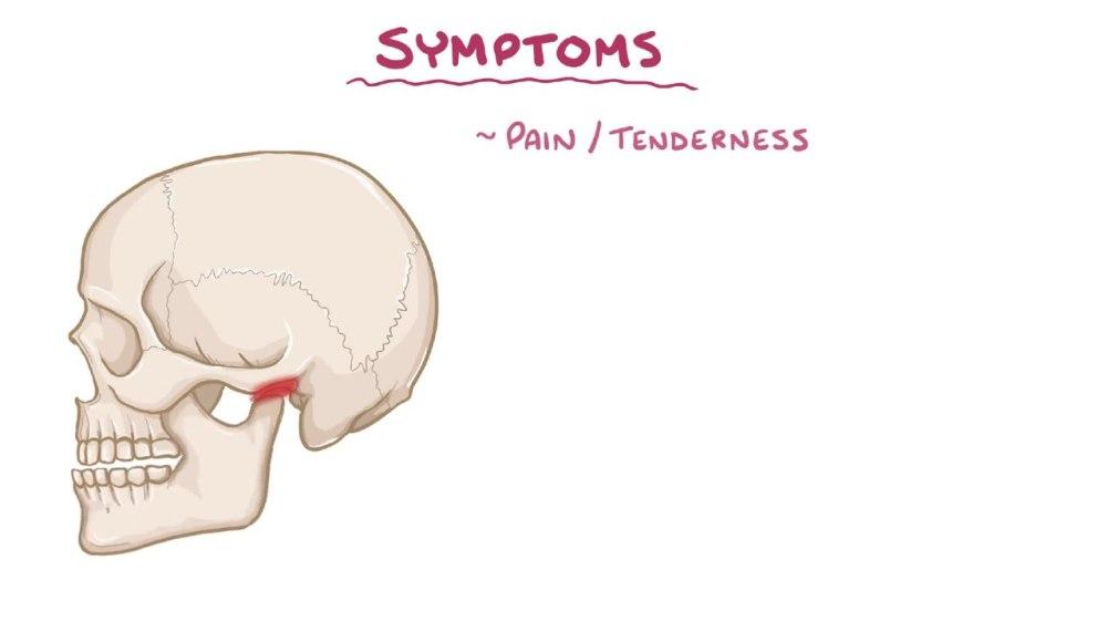 medium resolution of file temporomandibular joint dysfunction webm