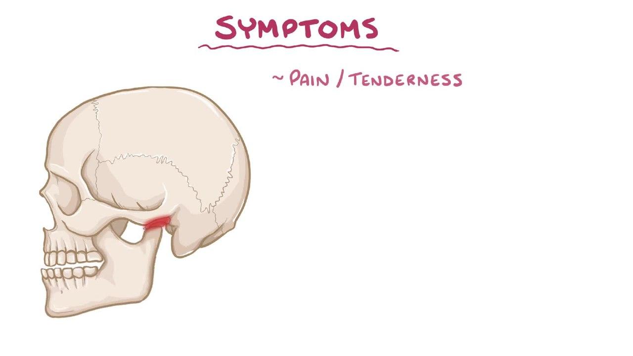 hight resolution of file temporomandibular joint dysfunction webm