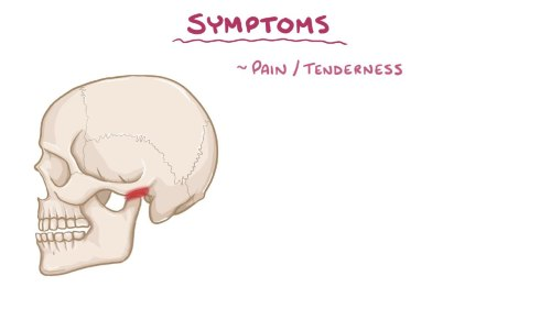 small resolution of file temporomandibular joint dysfunction webm