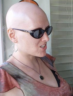 This is a self-portrait of me. I have alopecia...