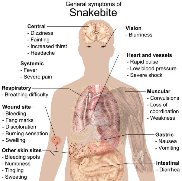 Common symptoms of any kind of snake bite poisoning