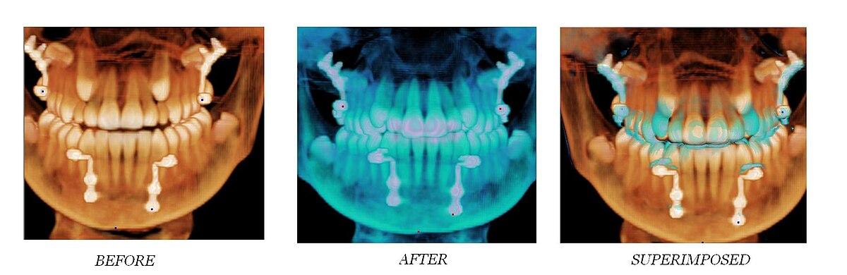 Implant treatment planning.jpg