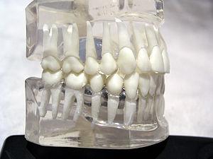 Teeth model2