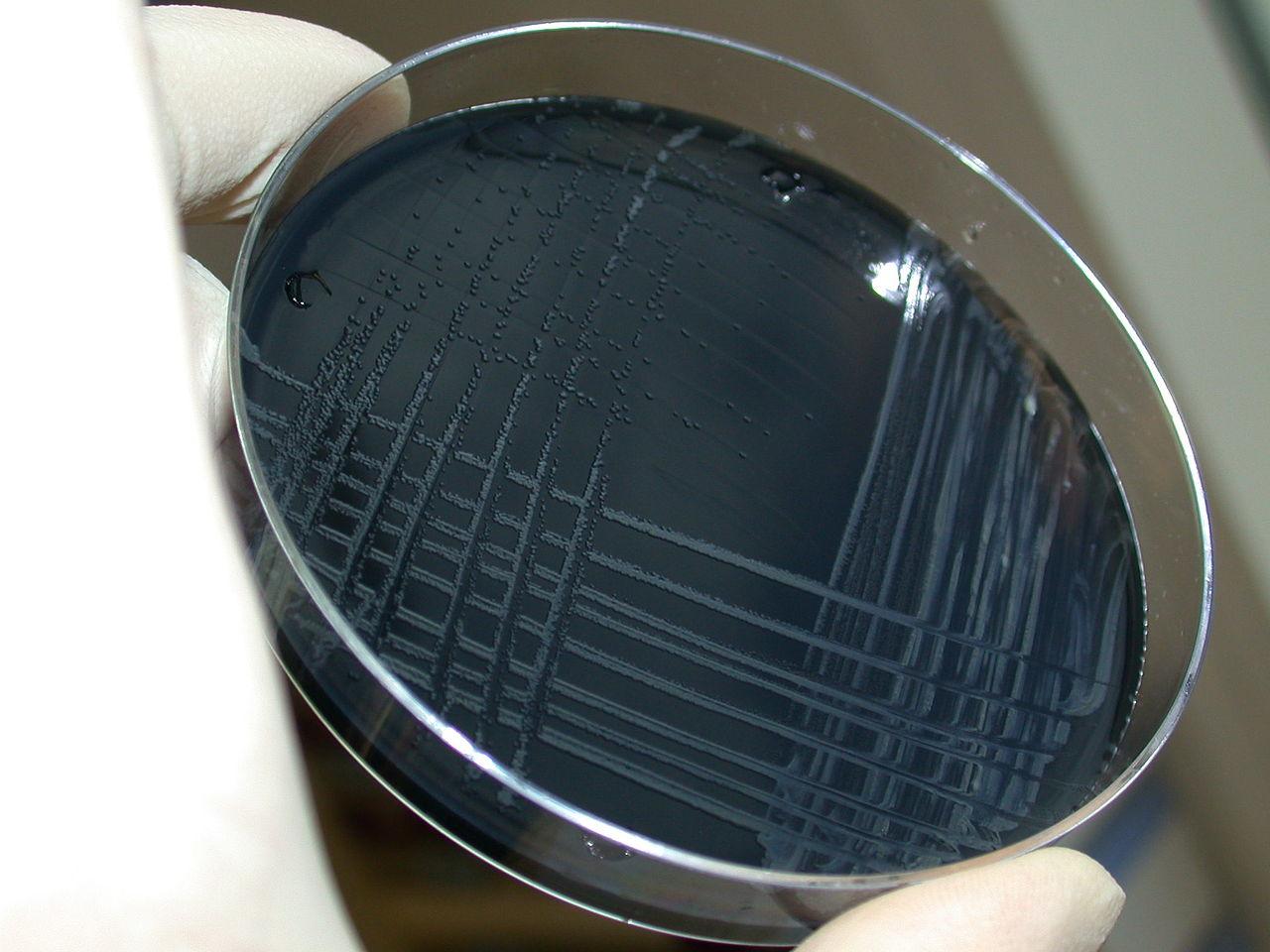 Medium Biakkan Bakteri