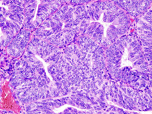Endometrioid adenocarcinoma from biopsy. H&E s...