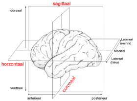 brain pic