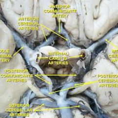 Right Lateral Brain Diagram 5 Pin Pci Express Adapter Middle Cerebral Artery - Wikipedia
