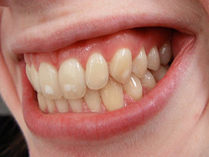 English: Photo of mild dental fluorosis, or ev...