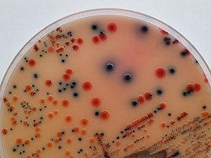 Isolation of Salmonella and E. coli on medium ...