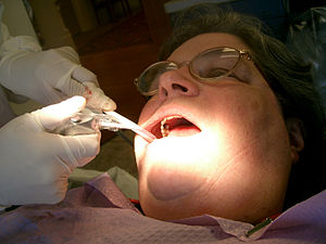 A Dental hygienist attends to a patient.