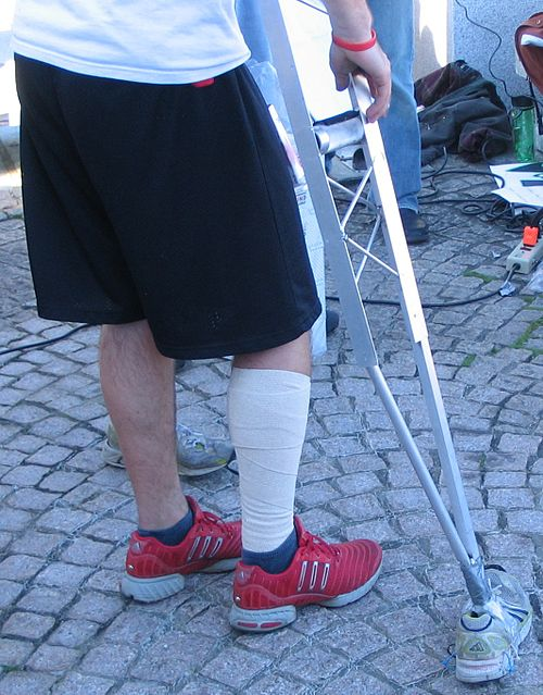 https://i0.wp.com/upload.wikimedia.org/wikipedia/commons/thumb/b/b5/KKC_2007_Crutches.jpg/500px-KKC_2007_Crutches.jpg