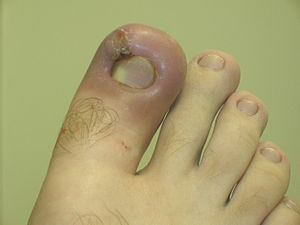 Infected ingrown toenail showing the character...