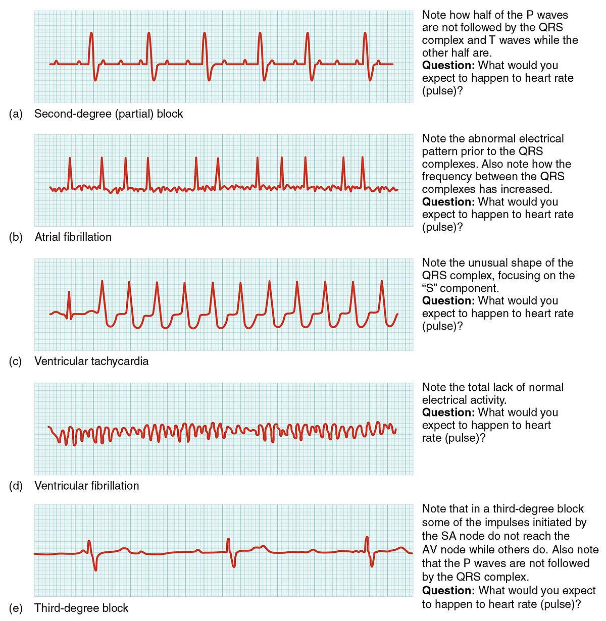 Arrhythmia - Simple English Wikipedia the free encyclopedia