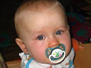 Polski: 9-cio miesięczne dziecko podczas płacz...