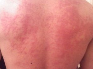 Hives on DLdoubleE's back from an allergic rea...