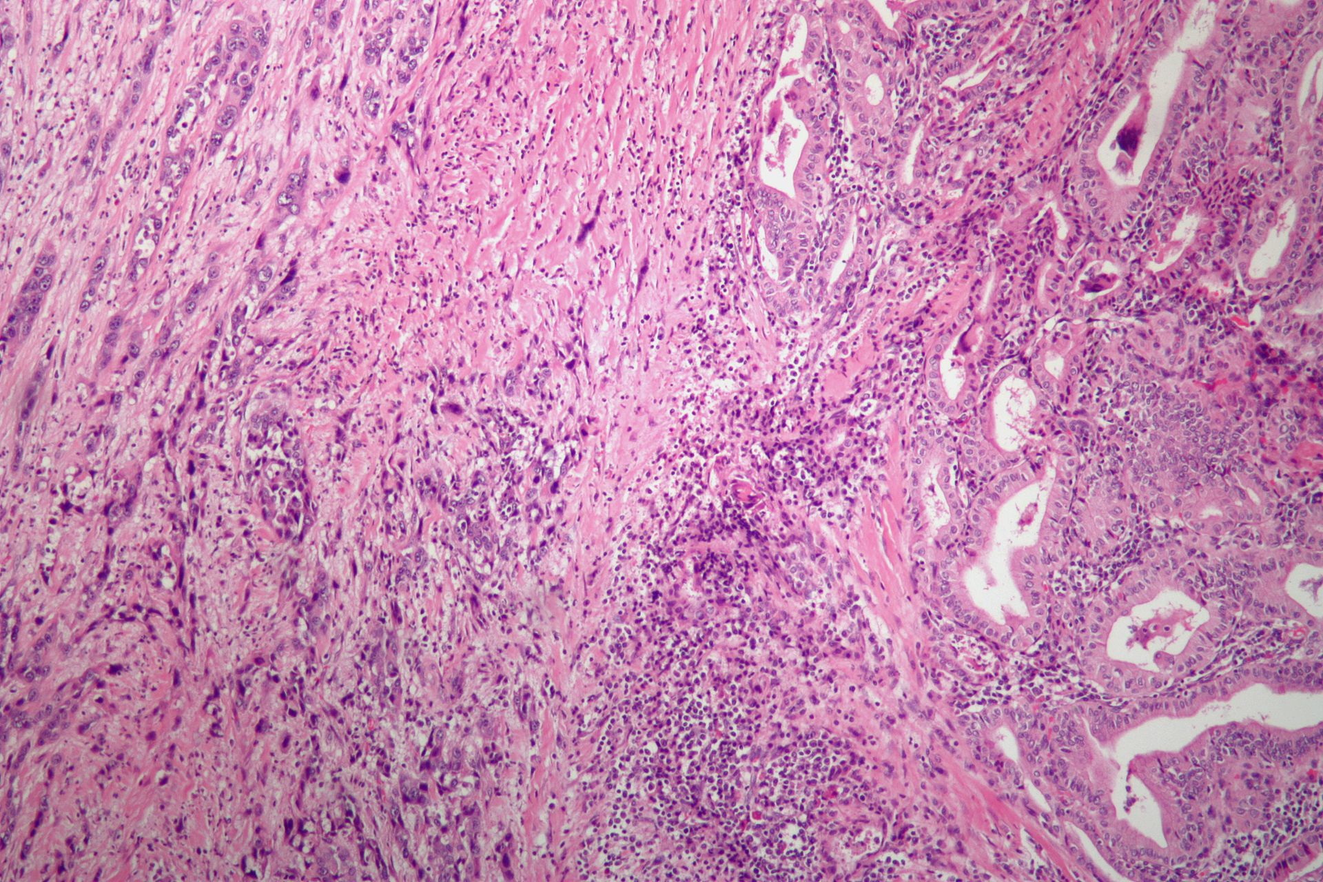 Anaplastic thyroid cancer  Wikipedia