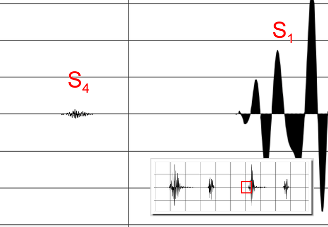 File:Fourth heart sound 110bpm.png - Wikimedia Commons