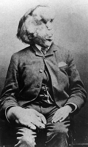 English: Joseph Merrick (1862–1890), photograp...