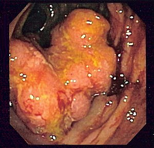 Endoscopic image of colon cancer identified in...