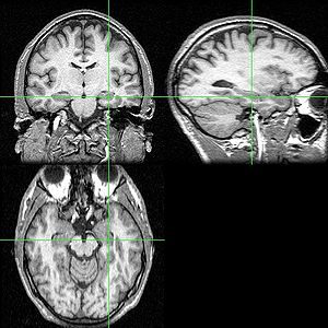 MRI scan with hippocampus indicated