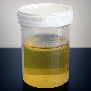 human urine in specimen container