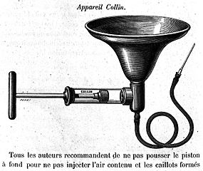 File:Collins transfusion Apparatus, 19th century. Wellcome