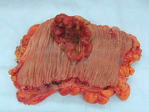 English: Colorectal cancer, gross appearance o...