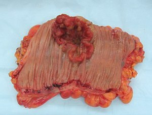Colorectal cancer, gross appearance of an open...