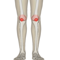 Medial Lower Leg Muscles Diagram Opel Astra 1996 Wiring Patellofemoral Pain Syndrome Wikipedia Of The Bones Extremity Rough Distribution Areas Affected By Pfps Highlighted In Red Patella And Distal Femur